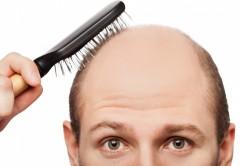 homem com calvície passando uma escova de pentear em sua cabeça