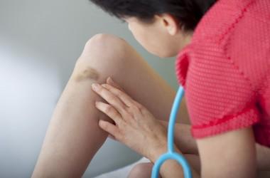 pessoa com manchas roxas na perna