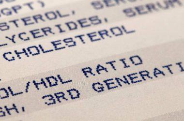 colesterol risco cardiovascular