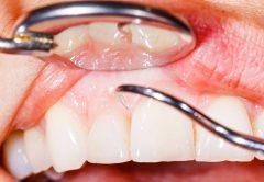 procedimento dentário artrite